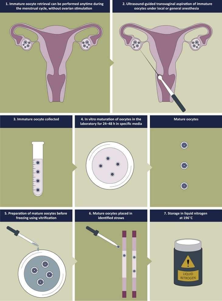 Infographie décrivant la procédure IMV. © M. Grynberg et al., Annals of Oncology