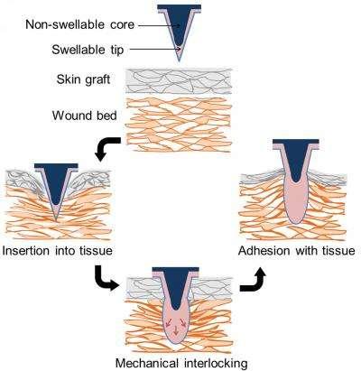 Ce schéma explique le principe de fonctionnement du pansement. La structure pénètre la peau, puis gonfle au contact de l'eau et adhère bien mieux à la peau que les agrafes traditionnelles. © Karp Lab