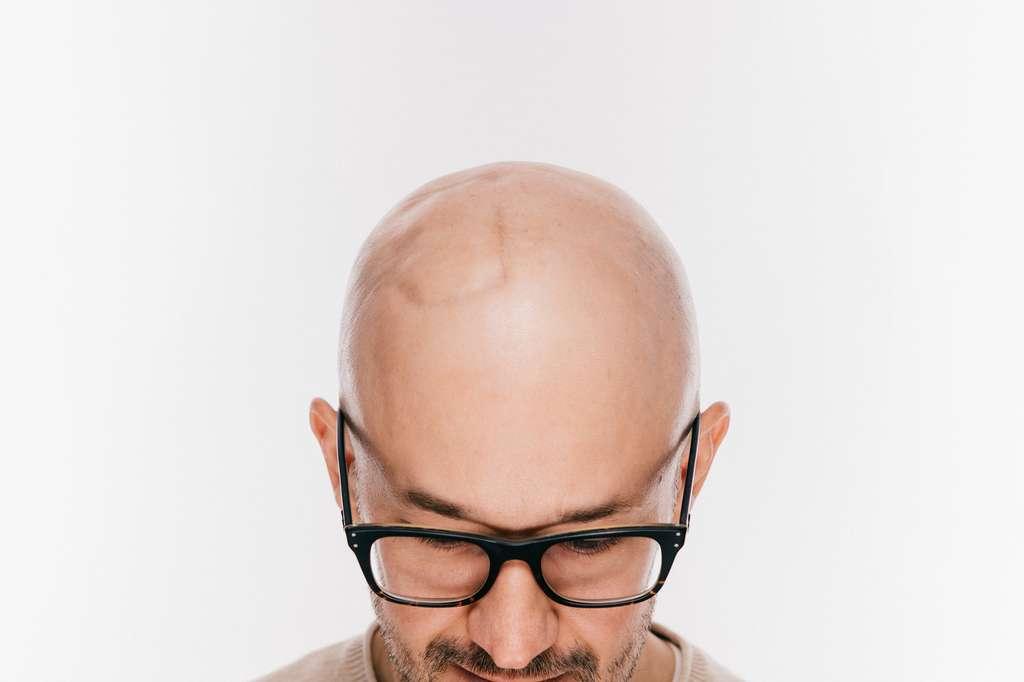 L'excès de sébum étouffe la racine des cheveux. © benevolente, Fotolia