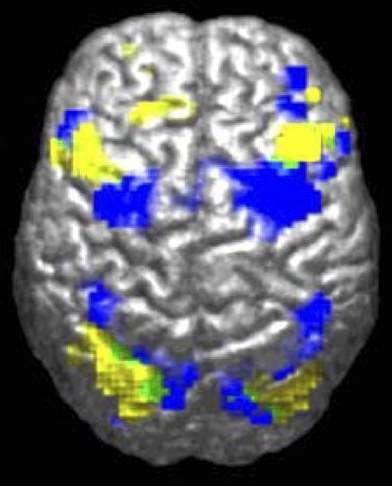 Quelles sont les causes de l'autisme ? L'autisme est avant tout un trouble neurobiologique, le cerveau connaissant un problème de maturation d'ordre génétique ou autre. Ce scan montre par exemple que les autistes n'utilisent pas les mêmes régions du cerveau (en jaune) que des témoins (en bleu) pour effectuer une même fonction motrice. © Ralph-Axel Müler, Wikipédia, CC by 2.5