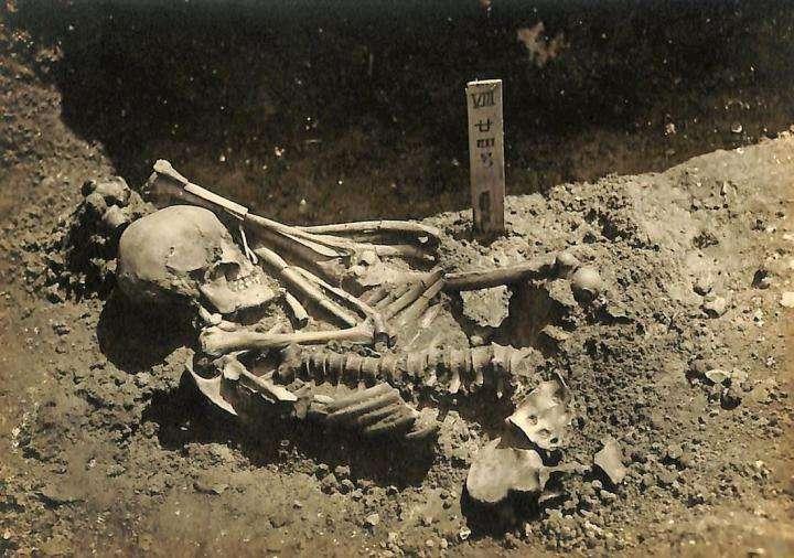 Les restes de Tsukumo 24, victime d'une attaque de requin pendant la période Jōmon au Japon. © Université de Kyoto