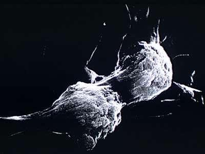 cellule infectée (située en arrière plan) par le virus HIV responsable du SIDA entrain de fusionner avec une cellule non infectée, qui le devient alors) copyright J.C. Chermann