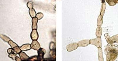 À gauche, le champignon Rhizoctonia et à droite, Reduviasporonite. © Rhizoctonia image courtesy of Lane Tredway, The American Phytopathological Society