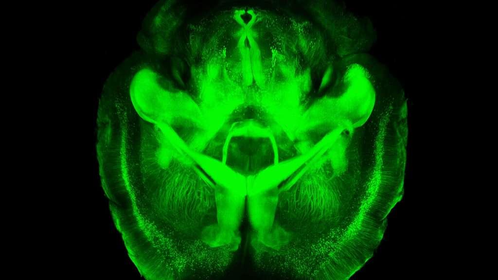 Un cerveau de souris transparent