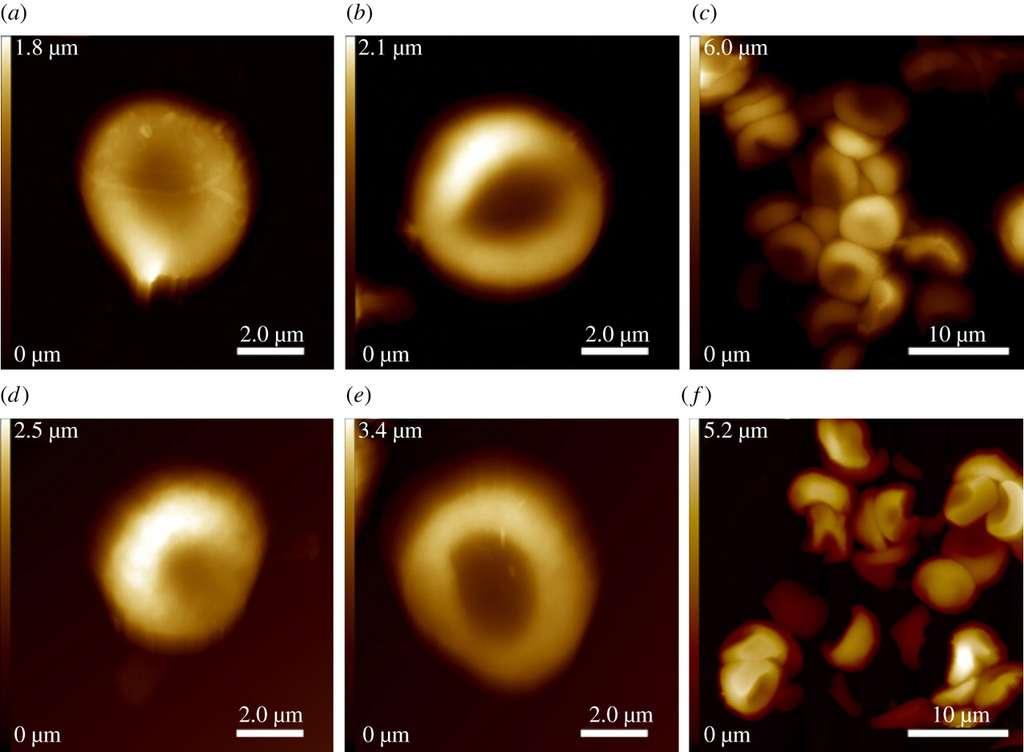 Ces cellules, vues par microscopie à force atomique, ont la forme caractéristique des globules rouges. Sur les trois cellules qu'ils ont pu observer, l'une d'elles venait de la cicatrice au poignet, les deux autres ont été récupérées dans la blessure par flèche. © A. Zink et al., Interface