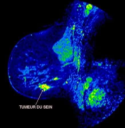 Image couleur d'un cancer du sein. Crédits : perso.wanadoo.fr/association.afrha/icono.htm