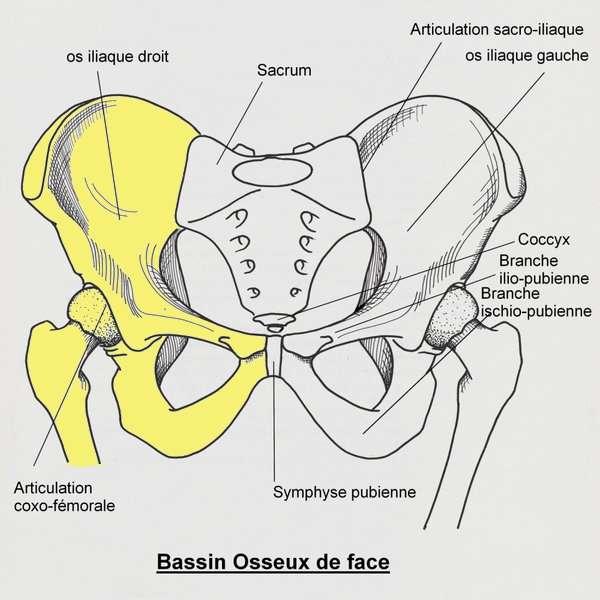 Dans cette opération, une grande partie du bassin (en jaune) a été retirée. C'est la partie supérieure du fémur droit, elle aussi enlevée, qui réunit désormais le sacrum à la symphyse pubienne. © D. Renard, Wikipédia, DP