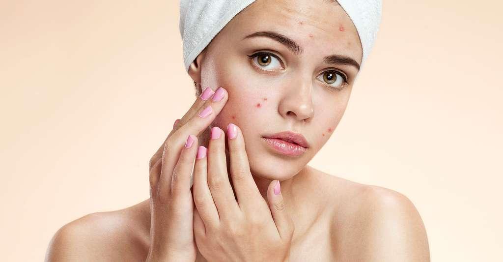 L'acné est une maladie de peau, qui touche les adolescents. © R.Iegosyn - Shutterstock