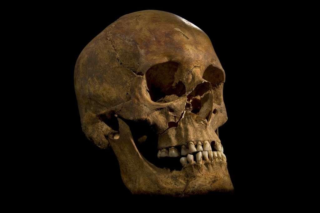 Voici Richard III, roi d'Angleterre, couronné en 1483. Il est mort à Bosworth en 1485, en combattant les troupes levées par Henri Tudor, fraîchement débarqué de Bretagne. Les marques de coups font partie des indices qui ont permis d'authentifier le squelette du souverain. © Université de Leicester
