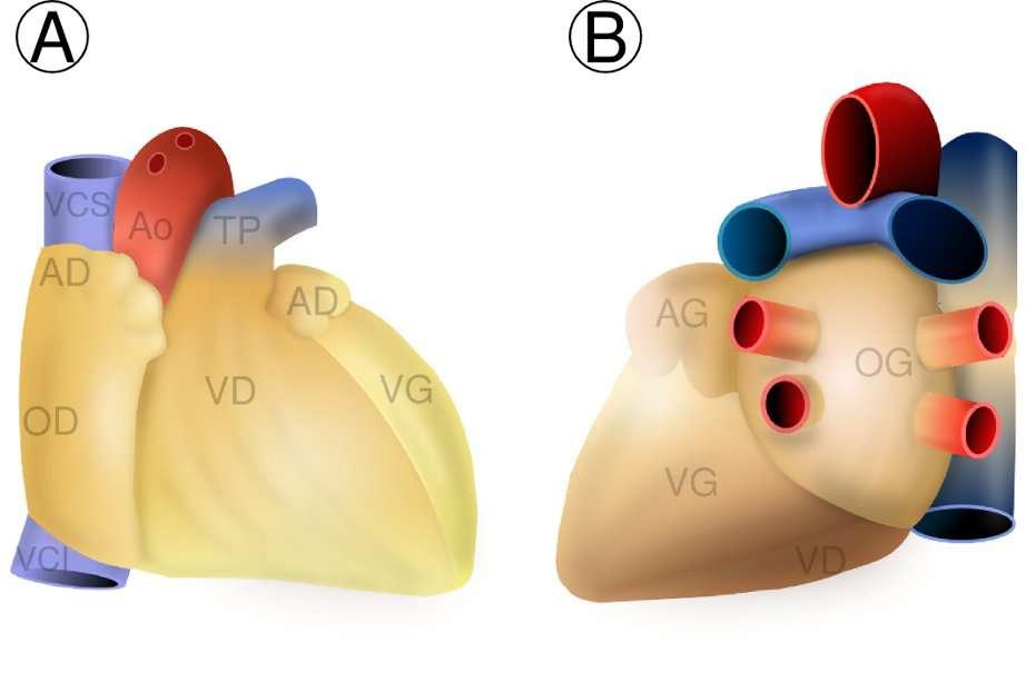 Figure 2. Anatomie externe du cœur humain. A : vue antérieure du cœur ; B: vue basale du cœur. AD : auricule droit ; AG : auricule gauche ; Ao : aorte ; OD : oreillette droite ; VCI : veine cave inférieure ; TP : tronc pulmonaire ; VCS : veine cave supérieure ; VD : ventricule droite ; VG : ventricule gauche. © Hugues Jacobs