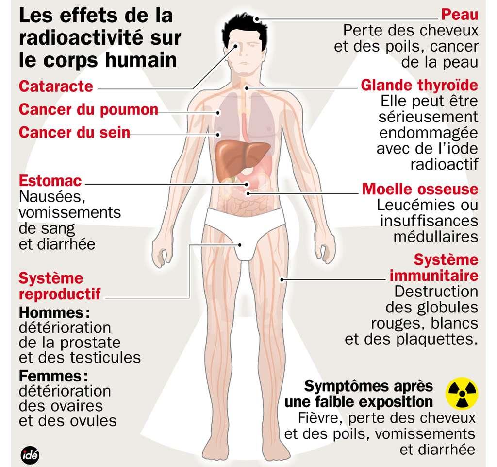 L'irradiation peut causer de nombreux problèmes de santé. © Ide