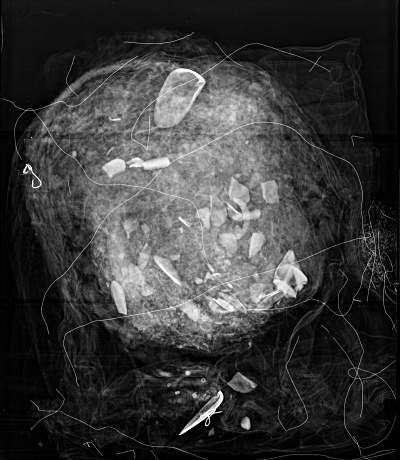 Radiographie d'un masque péruvien (ou fausse tête) montrant la présence de coquilles ajoutées au bourrage intérieur. © The Field Museum