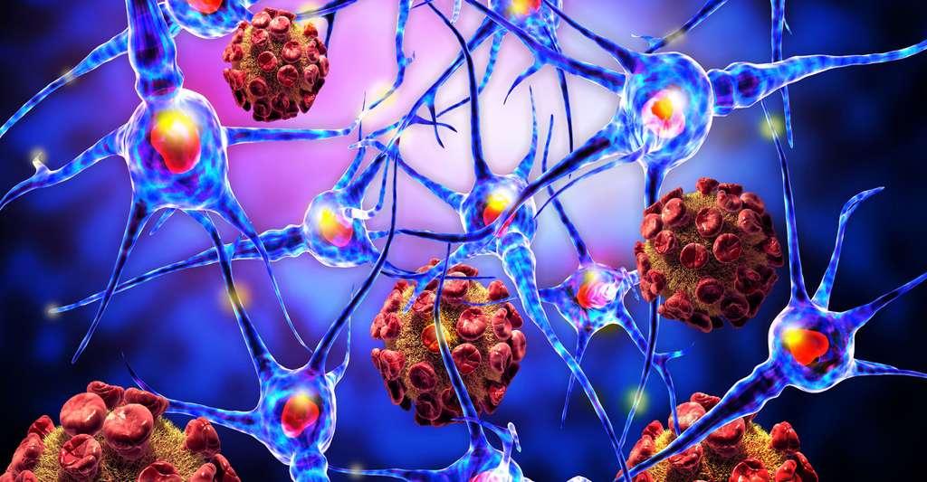 Localisation de lésions cérébrales. © Ralwel, Shutterstock