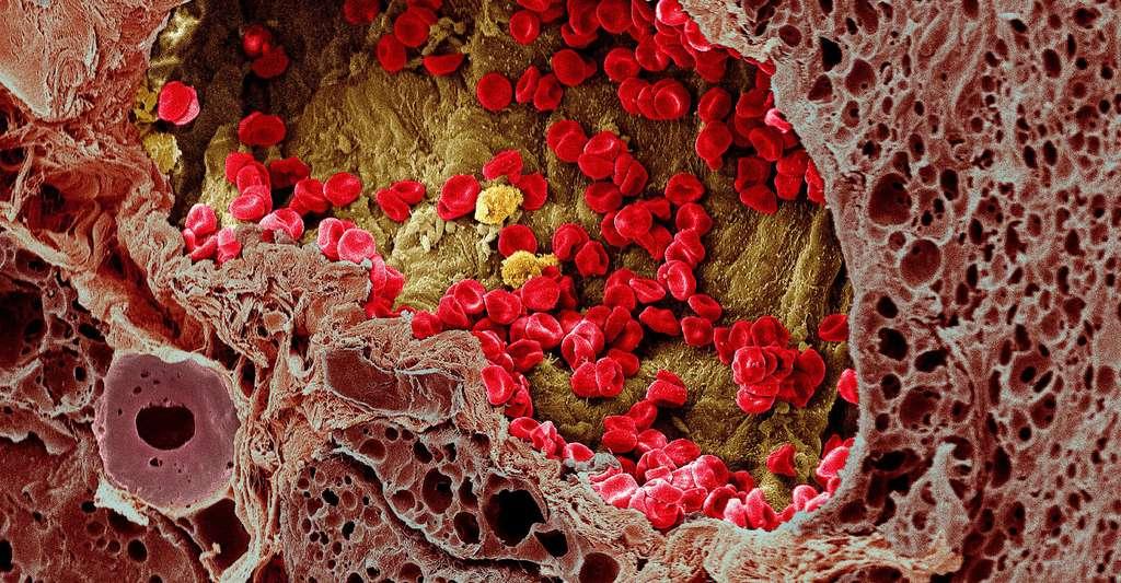 Un vaisseau sanguin dans un mélanome