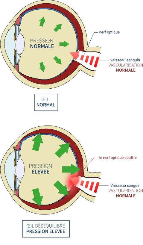 Lorsque la pression à l'intérieur de l'œil est trop forte, le nerf optique est endommagé, ce qui conduit à une perte progressive de la vue. © Institut du glaucome, Nantes