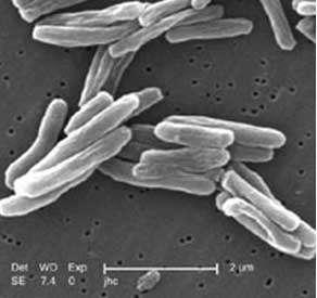 Visualisation de Mycobacterium tuberculosis au microscope électronique Source : Centers for Disease Control and Prevention, NIH, domaine public. © Wikimedia Commons