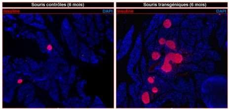 L'activation du gène Pax4 dans le pancréas de souris transgéniques induit la régénération massive de cellules bêta productrices d'insuline (visibles en rose à droite). L'image de gauche correspond au pancréas de souris contrôles. © Patrick Collombat, Inserm