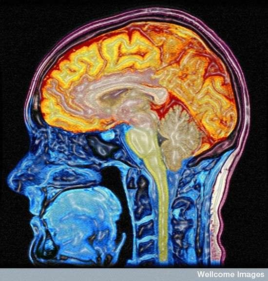 Le cerveau humain, ici vu sous IRM, recèle encore de nombreux mystères. Ces découvertes chez les souris, si elles sont applicables à l'Homme, pourraient fournir de nouveaux moyens de lutter contre les maladies neurodégénératives. © Mark Lythgoe & Chloe Hutton, Wellcome Images, Flickr, cc by nc nd 2.0