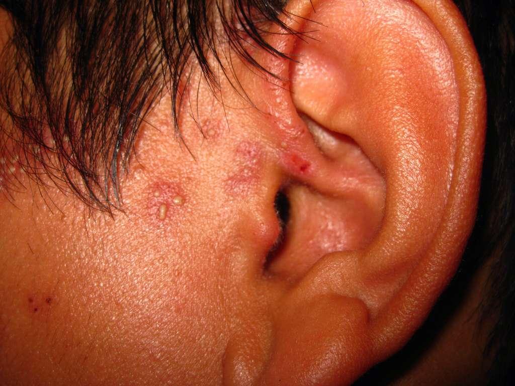 Le zona se caractérise par des éruptions cutanées entourant le ganglion infecté. Le virus est le même que celui de la varicelle qui se réveille après plusieurs années de latence. © brownpau, Flickr, cc by 2.0