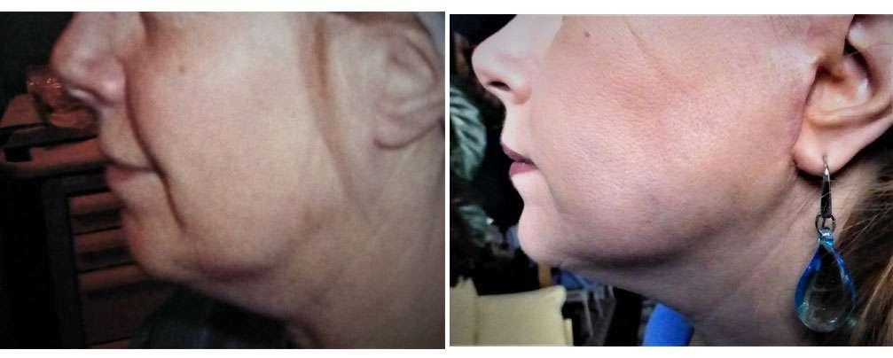 À gauche, aspect de cou empâté avant lifting CF biplan. À droite, résultat 6 mois après lifting CF biplan. © Dr Mitz, tous droits réservés