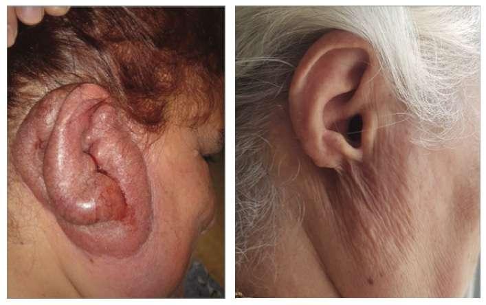 Lupus tuberculeux : l'oreille avant et après le traitement antibiotique. © Not Tsur et al, JAMA Dermatology, 2021