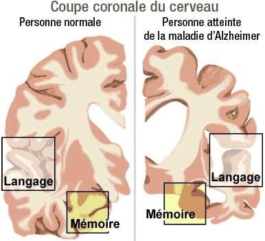 Les zones du cerveau détruites par la maladie d'Alzheimer sont en charge du langage et de la mémoire. © Domaine public