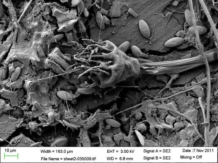 Une ciliée Suctoria couverte de bactéries symbiotiques et des diatomées, fixées sur un morceau de plastique fissuré et altéré. © Erik Zettler, Sea Education Association