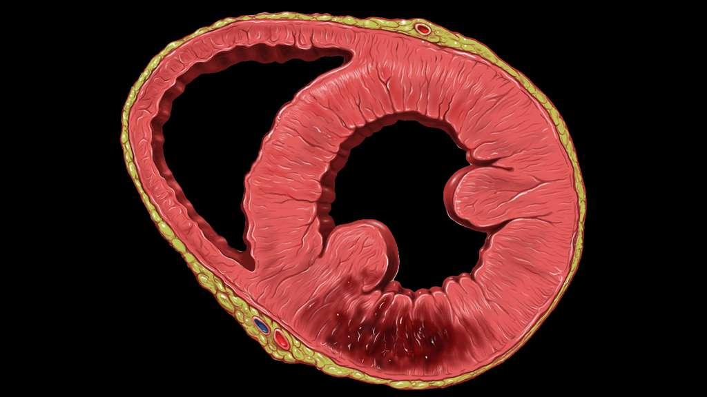 Infarctus dans le ventricule gauche