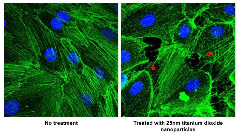 À gauche, des vaisseaux sanguins et des nanoparticules de dioxyde de titane. À droite, le résultat d'une exposition de 30 minutes. On observe bien la nouvelle porosité des vaisseaux sanguins. © Université nationale de Singapour