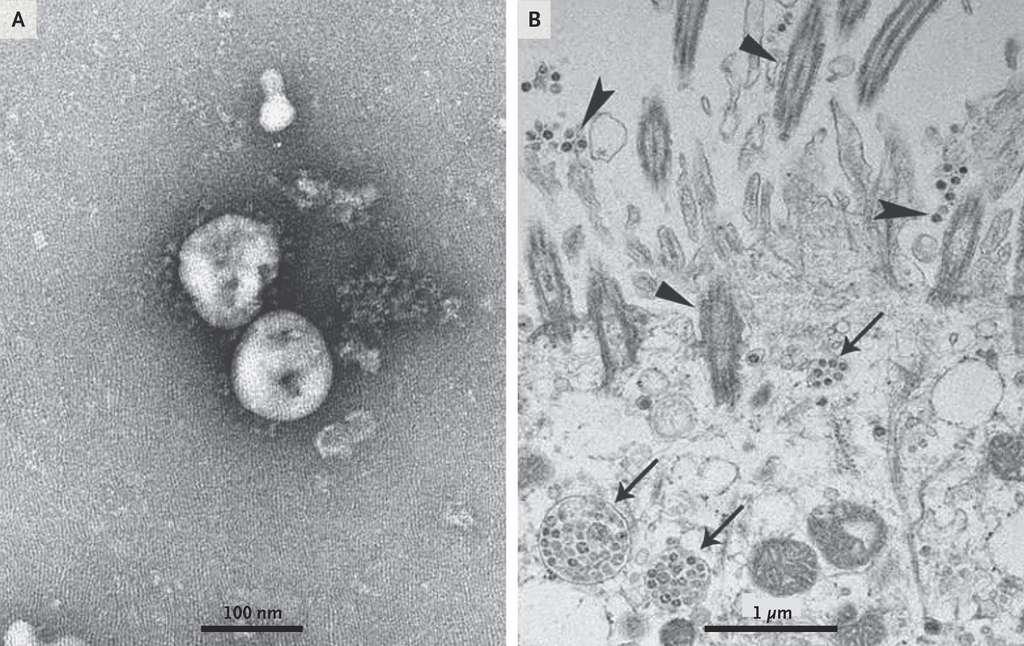 Des particules libres du virus 2019-nCoV photographié en microscopie électronique en coloration négative. B. Les particules virales dans les cellules de l'épithélium respiratoire des patients infectés sont désignés par des flèches. © Zhu, et al. NEJM, Janvier 2020