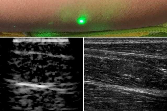 Les chercheurs du MIT (États-Unis) ont utilisé leur nouvelle technique d'imagerie ultrasons laser pour scanner des avant-bras (image à gauche); et pour comparaison (à droite), la même image prise par échographie classique. Ils ont ainsi pu «voir» jusqu'à six centimètres sous la peau avec un laser placé à un demi-mètre des volontaires. © Massachusetts Institute of Technology