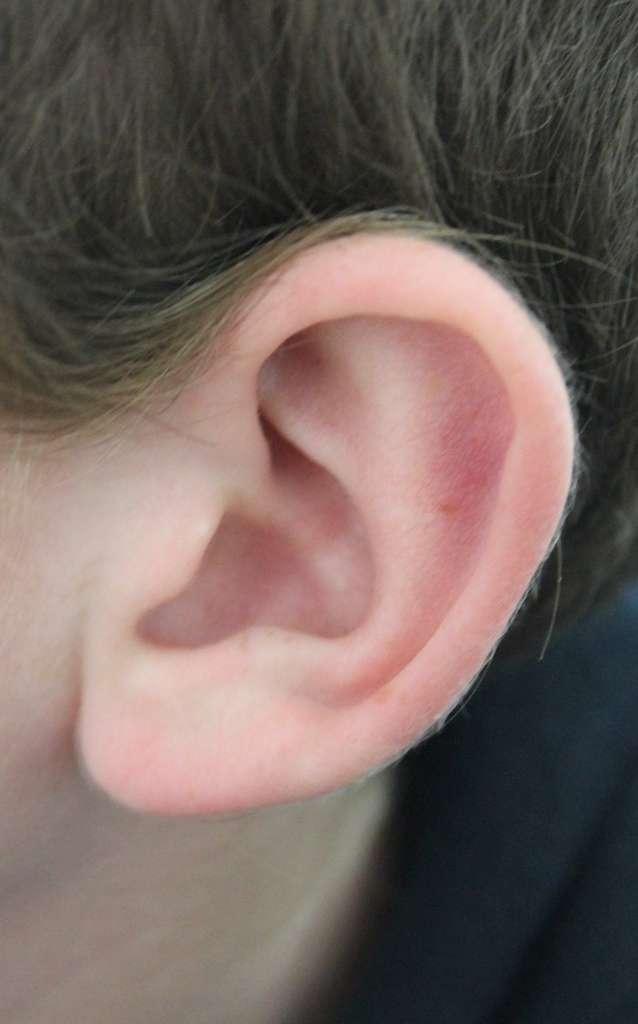 La surdité verbale rend les sons du langage inaccessible au patient, sans empêcher la perception de tous les autres sons. La communication par écrit n'est en revanche pas affectée. © Wikimedia Commons, cc by sa 3.0