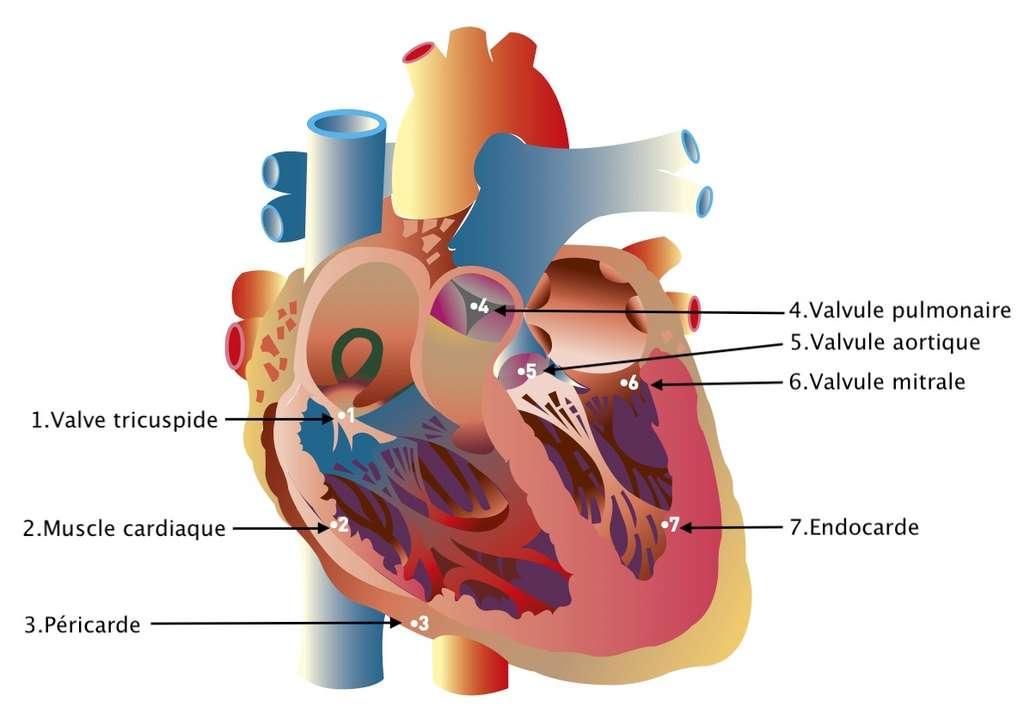 L'endocardite infectieuse touche deux fois plus l'homme que la femme et à partir de 50 ans. © Fédération Française de Cardiologie, adaptation C.D pour Futura