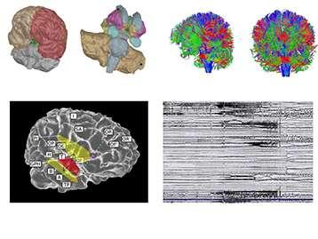 Le Patient Epileptique Virtuel : les régions du cerveau et leurs connexions sont reconstruites par ordinateur. Les simulations numériques génèrent un signal électrique similaire à celui généré par le cerveau pendant les crises. Ces simulations permettent de tester informatiquement de nouvelles stratégies thérapeutiques. © INS UMR1106 Inserm, AMU