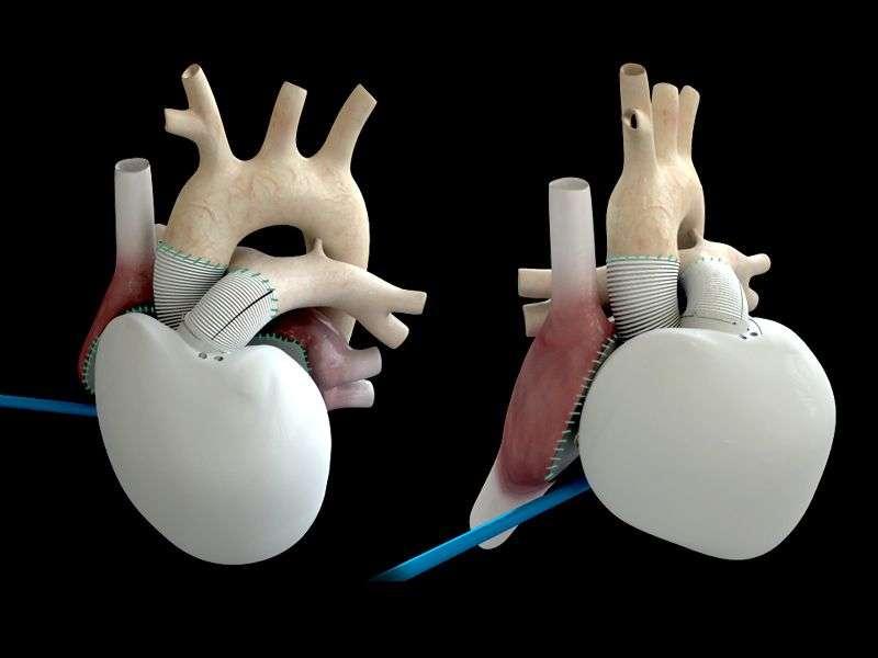 Le cœur artificiel autonome de Carmat