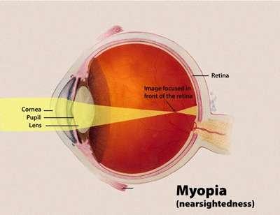 La myopie caractérise une vision qui se trouble à mesure que les objets s'éloignent. Ce schéma illustre la raison de la pathologie. En situation normale et idéale, les rayons lumineux convergent en un point situé au niveau de la rétine (retina), grâce à la cornée (cornea), la pupille (pupil) et le cristallin (lens). Chez les myopes, ce n'est pas le cas, ils se rencontrent en un point situé avant la rétine, parce que l'œil est trop long. L'image qui arrive sur la rétine est imparfaite, la vision est trouble. © NEI, Wikipédia, DP
