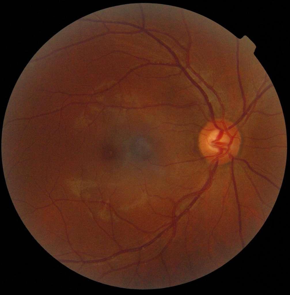 Sur cette rétinographie de l'œil, la macula correspond à la tâche sombre sur la gauche de l'image. La zone sombre au centre n'est qu'une ombre, tandis que la région claire sur la droite matérialise la papille, la région de laquelle part le nerf optique. © Ske., Wikipédia, cc by sa 3.0