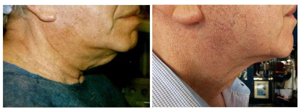 Aspect préopératoire de profil d'un patient avec cervico-plastie et, à droite, résultat post opératoire après 6 mois. © Dr Mitz, tous droits réservés