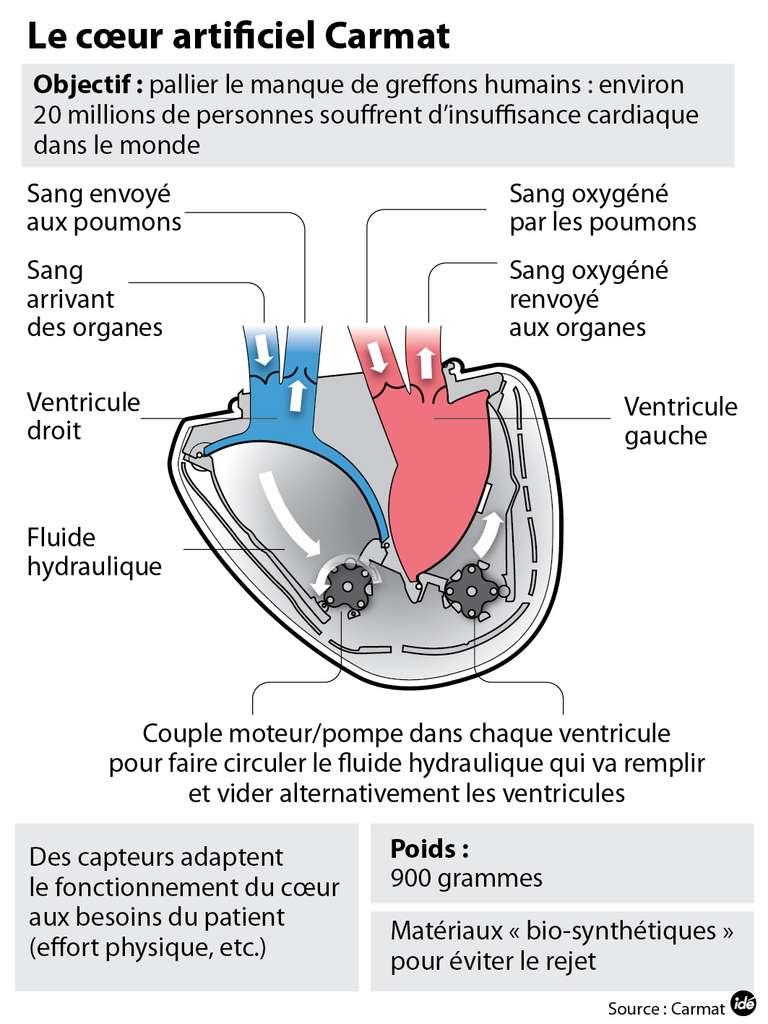 Cette infographie reprend le principe de fonctionnement du cœur artificiel de Carmat. Connectés aux oreillettes droite et gauche du patient (non représentées ici, par lesquelles arrive le sang), les ventricules artificiels se gorgent de sang et le déversent vers les artères à l'aide d'un fluide hydrodynamique qui vient tendre et détendre la membrane, sous l'effet d'une pompe motorisée. © Idé