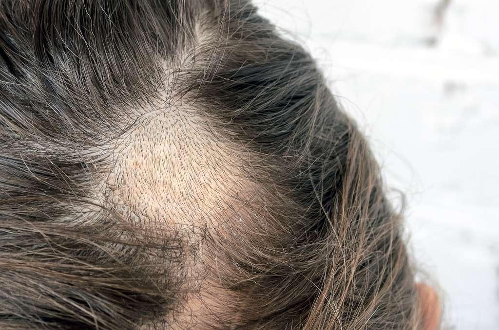 La teigne se manifeste par des plaques d'alopécie où le cheveu est court et cassant. © aneriksson - Fotoli