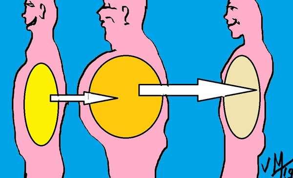 L'accumulation de graisse au niveau de l'abdomen est le plus souvent la cause des gros ventres dont se plaignent les patientes entre 16 et 60 ans. © Dr Mitz, tous droits réservés