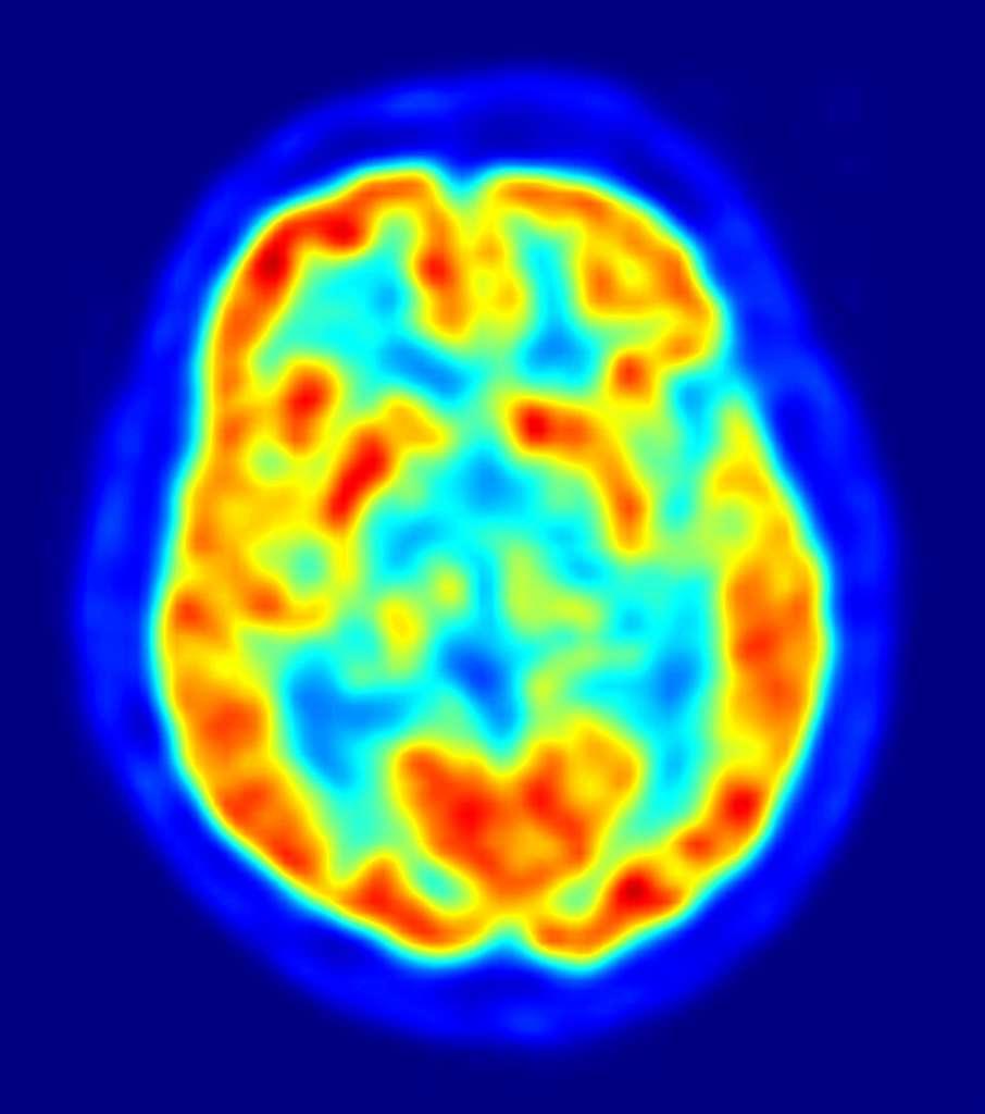 L'imagerie médicale permet d'observer le cerveau in situ, comme on peut le voir sur cet exemple grâce à la tomographie à émission de positons. Cependant, la méthode est bien plus contraignante en test de routine qu'un scanner rétinien. © Jens Langner, DP