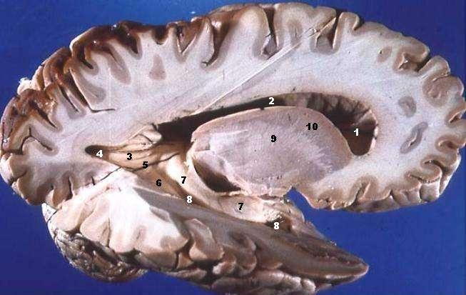 Le cerveau se divise en deux parties : la substance grise, face externe, où se situent les corps cellulaires des neurones et la substance blanche, face interne, regroupant principalement les axones, c'est-à-dire les prolongements des neurones. © John A. Beal, Wikimedia Commons, cc by sa 2.5