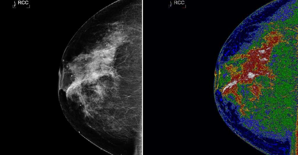 L'image de gauche montre une mammographie initiale avant le traitement MED - SEG. L'image sur la droite, avec la région d'intérêt (en blanc) montre une mammographie après le traitement MED - SEG. © Nasa Goddard SpaceFlight Center, CC by-nc 2.0