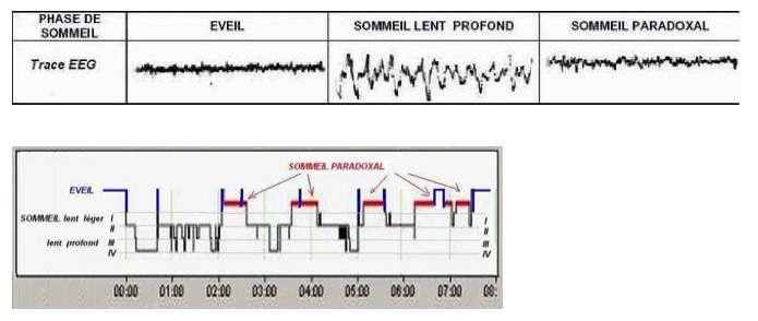 L'électroencéphalogramme correspondant aux différents cycles de sommeil (éveil calme, sommeil profond et sommeil paradoxal). En dessous, la succession des phases du sommeil pendant la nuit. © Guilhem Pérémarty