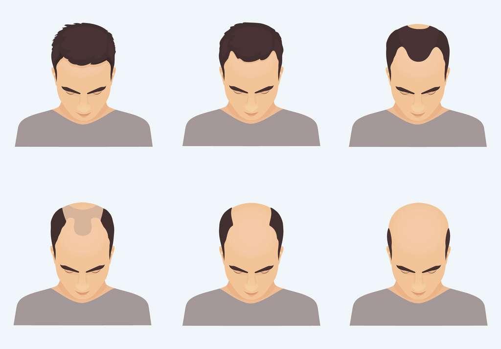 L'alopécie concerne 15 % des hommes à l'âge de 20 ans, un sur deux à 50 ans et plus de 80 % après 70 ans. © art4stock, Fotolia