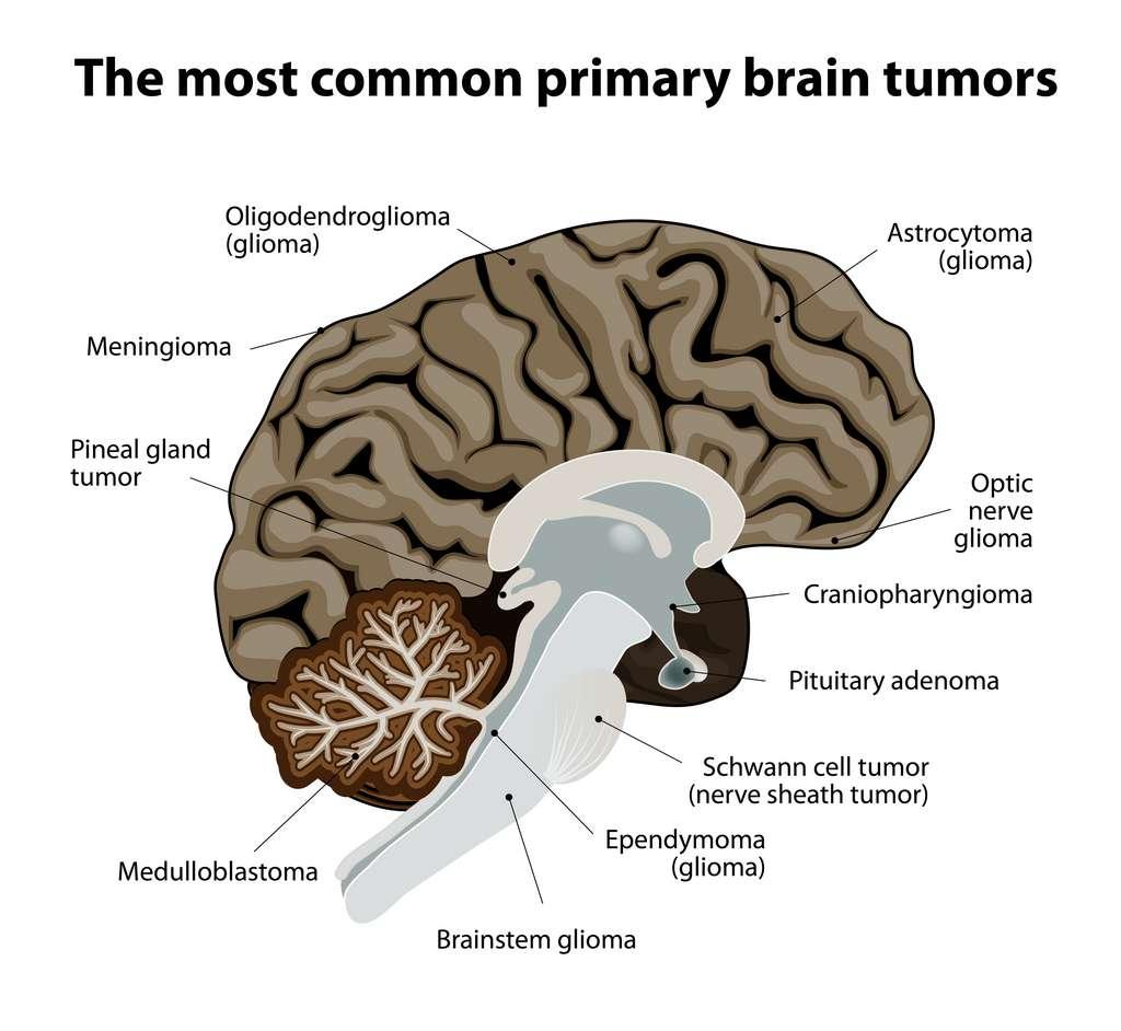 Schéma des tumeurs cérébrales primaires les plus courantes. © designua, Adobe Stock