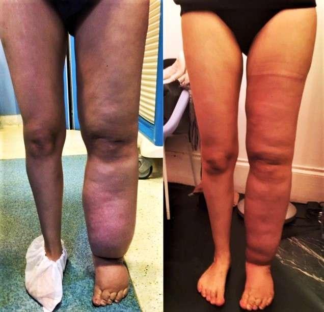 Résultat à 6 mois après un seul temps de lympho-liposuccion pour lymphœdeme chronique. © Dr Mitz, tous droits réservés