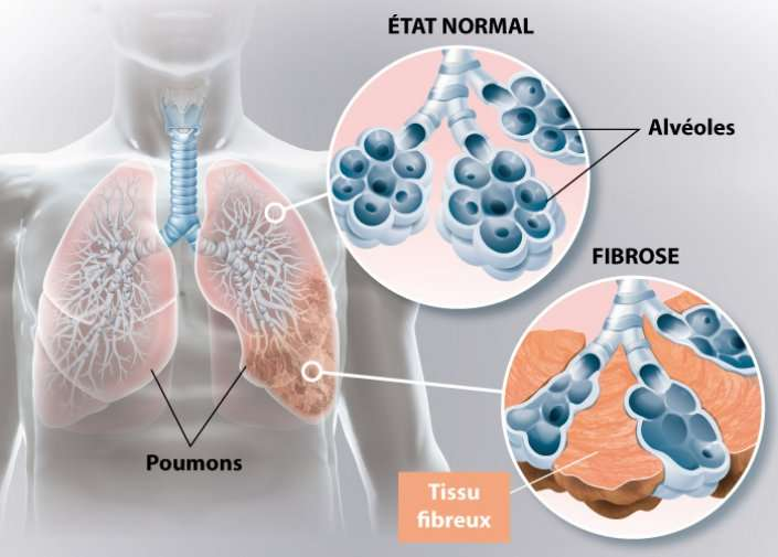La fibrose pulmonaire est liée à la formation de tissu fibreux cicatriciel dans les poumons. © Ramsay Santé