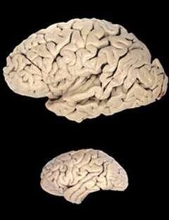 Une équipe de chercheurs pensent avoir découvert un gène responsable de l'évolution rapide du cerveau humain (en haut) par rapport à celui du chimpanzé (en bas) (Crédits : Todd Preuss/Yerkes Primate Research Center)